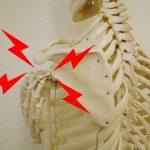 交通事故に遭い、肩こりや首の痛み、だるさはありませんか?